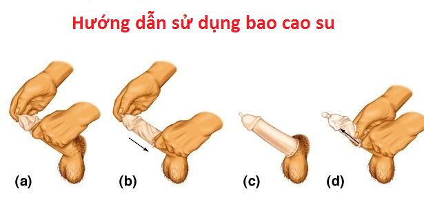 hướng dẫn sử dụng bao cao su